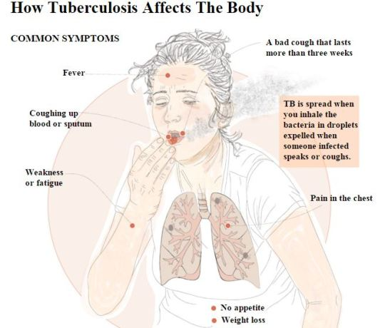 how tb affects the body Capture