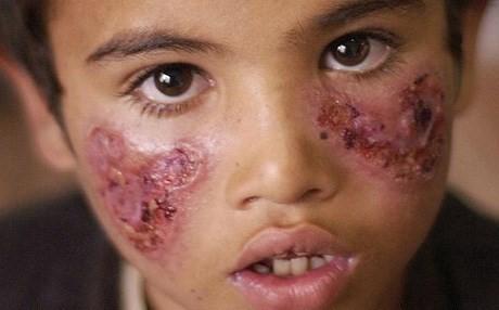 Leishmaniasis Wounds